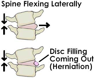 Herniated Disc Basics 2